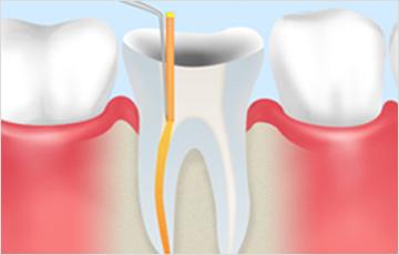 できる限り天然歯を残す根管治療