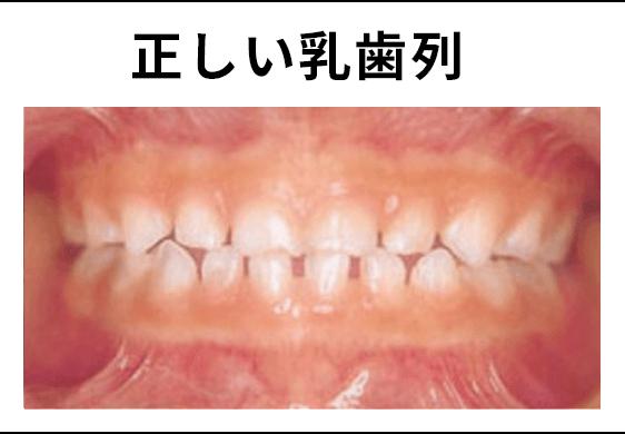 正しい乳歯列