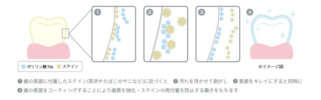 ポリリン酸ホワイトニングの特徴