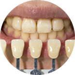 歯の色を審査